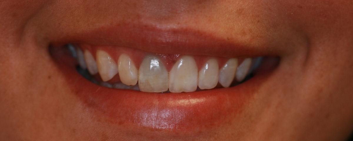 dientes oscurecidos - causas y tratamiento