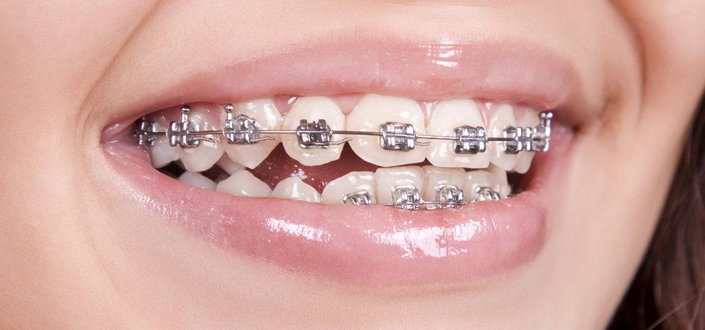 ortodoncia en Getxo